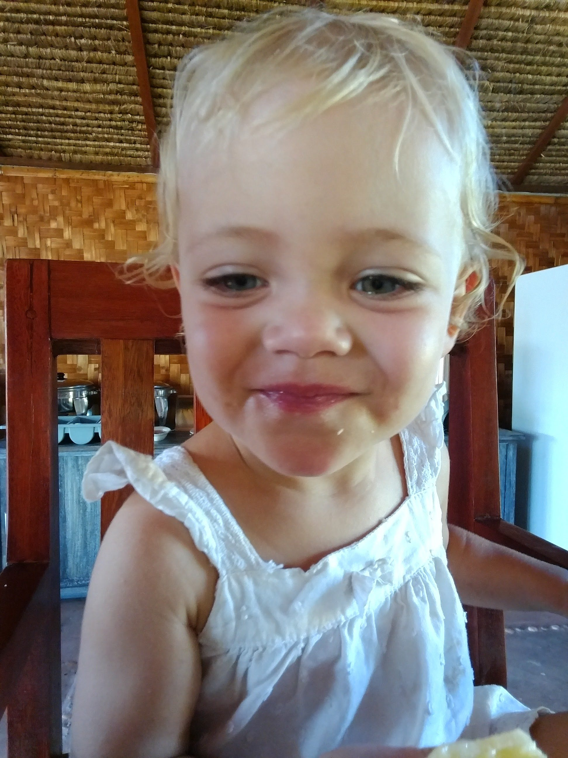 Chickenpox While Traveling with a Toddler
